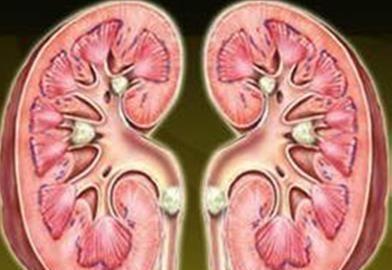 肾脏里的结石是如何形成的?慢慢改掉几个习惯,让你不痛苦