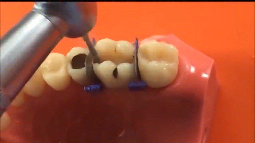 牙医是如何进行蛀牙龋齿牙齿修复的……