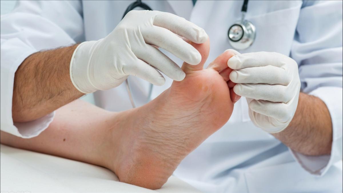 脚气痒得受不了,曲安奈德益康唑乳膏可有效抗真菌,能治脚气吗?