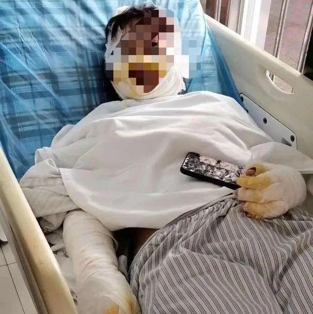 阳江发生一起泼硫酸伤人案件!警方全力追缉