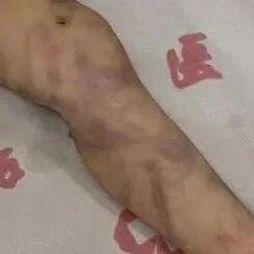 令人发指!1岁男童被打到休克,抢救6天未苏醒!警方:系生母殴打