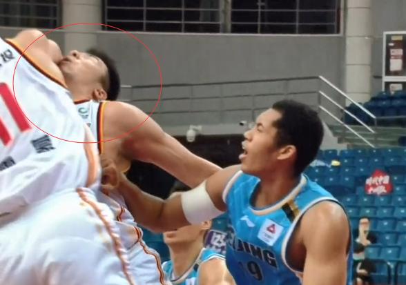 CBA又一球员惨遭肘击,抢篮板被队友误伤,这运气真够差,附动图