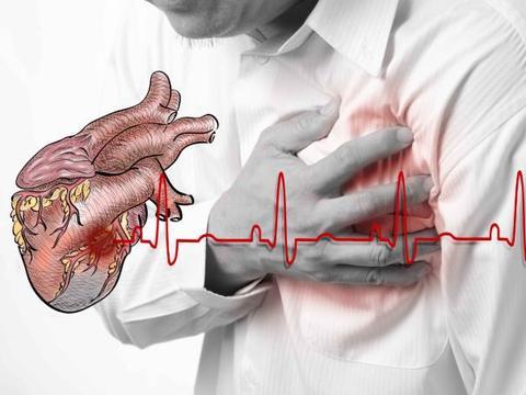 早晨起床有4个症状,或是心梗的迹象!及时检查,避免突发心梗
