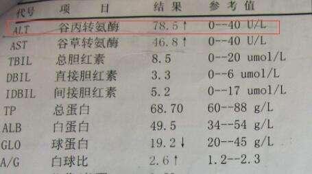 50老人吃他汀,没复查导致肝损害,专家:这样吃他汀减少副作用
