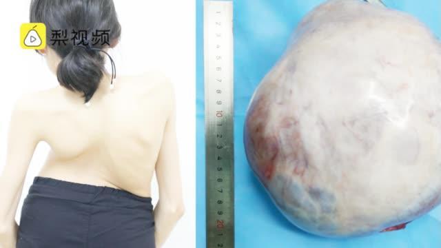 23岁女子体重不到50斤,长20公分大肿瘤占满腹盆腔