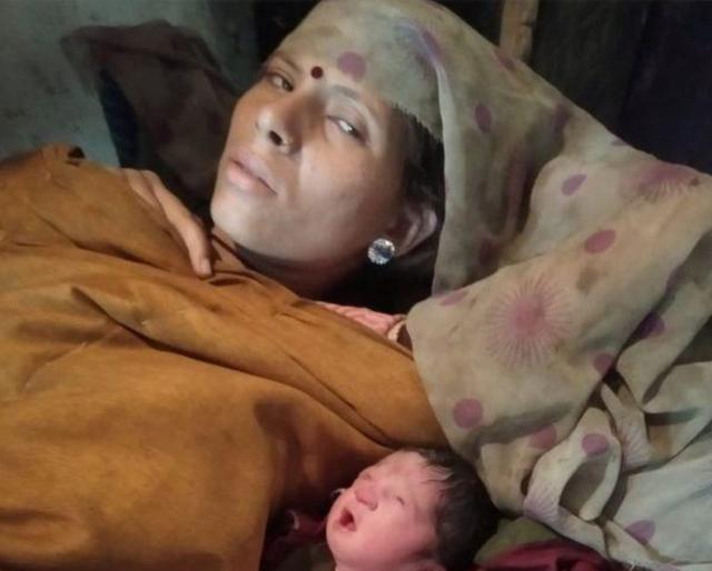 """印男童患病致脸部缺陷 民众却跪拜奉为""""神明""""父母为此拒绝治疗"""