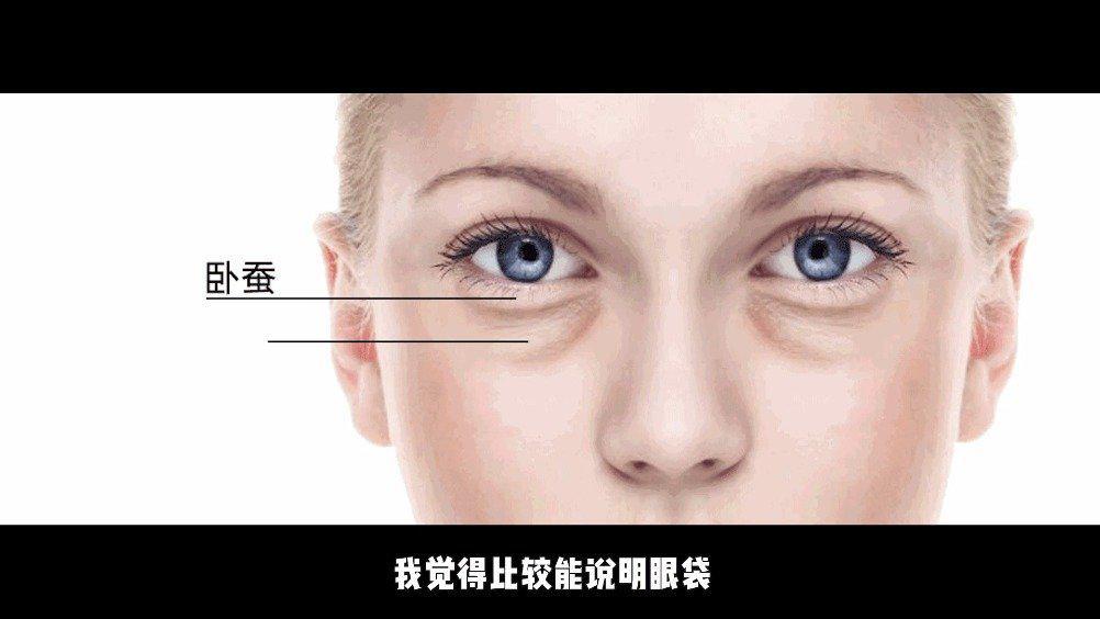 眼袋泪沟并存的人,不妨将眼袋的脂肪来个乾坤大挪移……