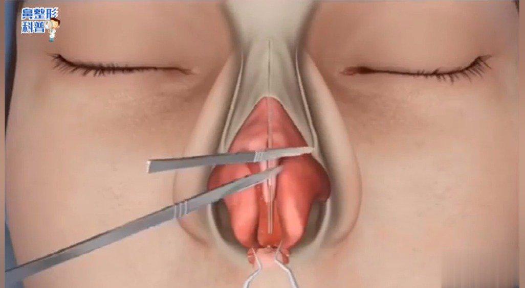 整形外科手术大部分属于门诊手术……
