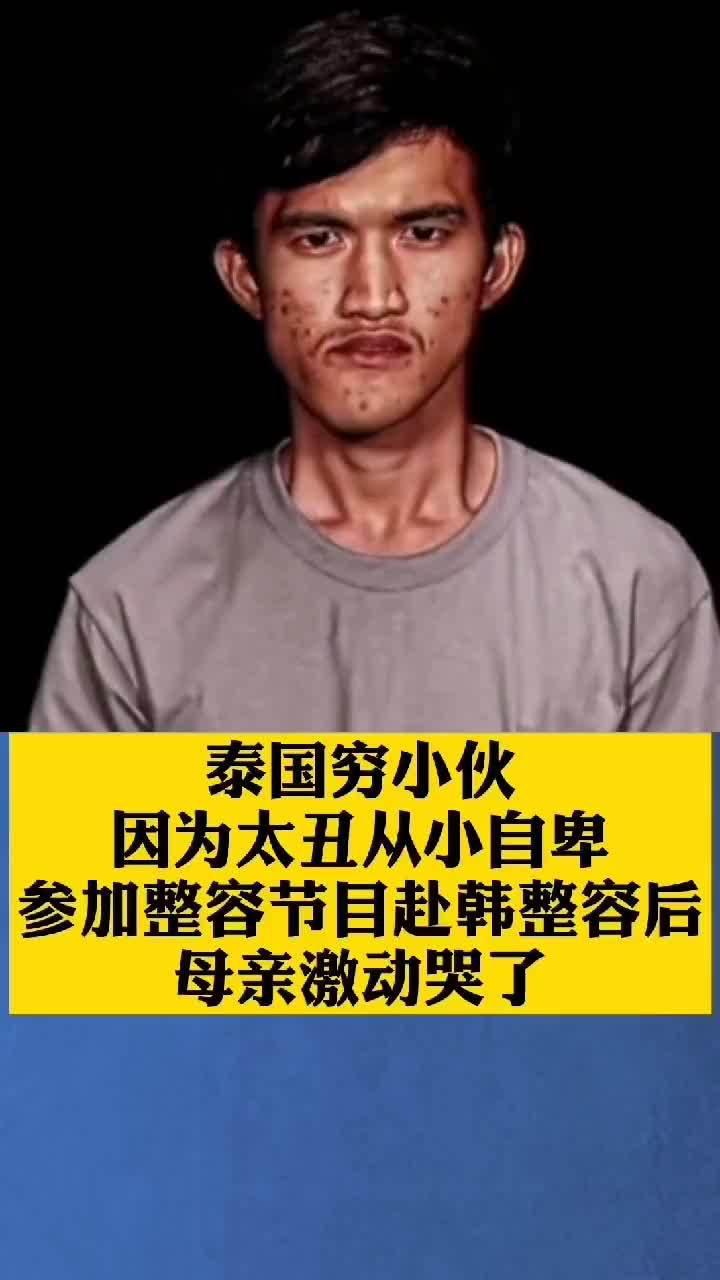 泰国穷小伙因为太丑从小自卑,参加整容节目赴韩整容后……