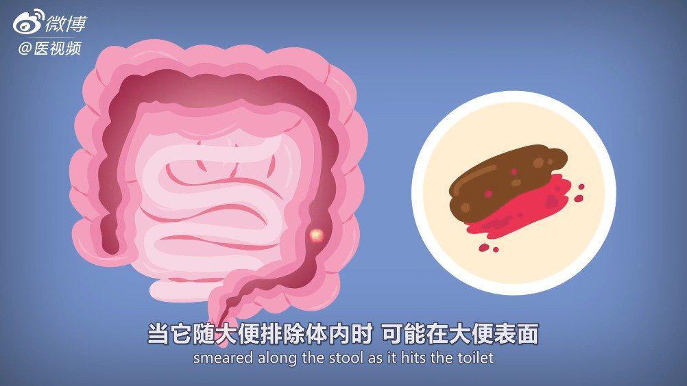 医学双语课程:血便及其临床意义 视频翻译by@懋懋懋饕餮 大便带