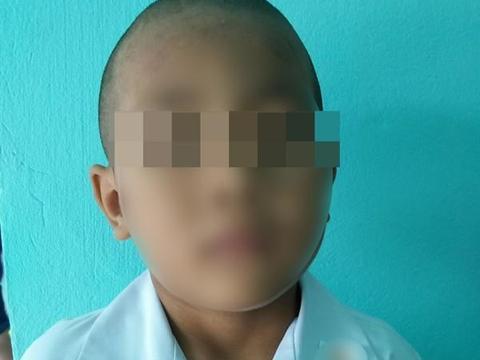 泰国失踪2日离奇死亡男孩再见身体只见半截,疑被狗咬啃尸而死