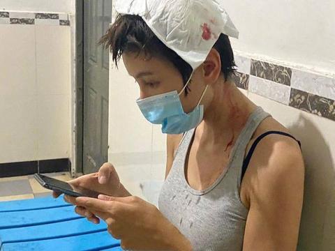龙女郎张蓝心拍戏受伤!头顶脖子血迹明显,本人淡定在医院玩手机