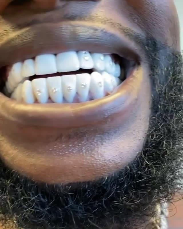 Gucci Mane展示他的镶钻牙齿,价值二十五万美元