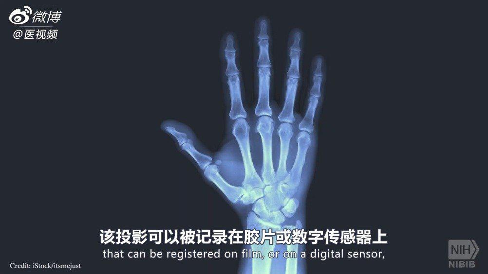 医学双语课程:X线检查设备的工作原理