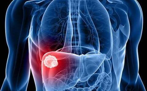 枸杞和它配,天生是一对!每天喝一点养肝护肝,修复受损肝细胞