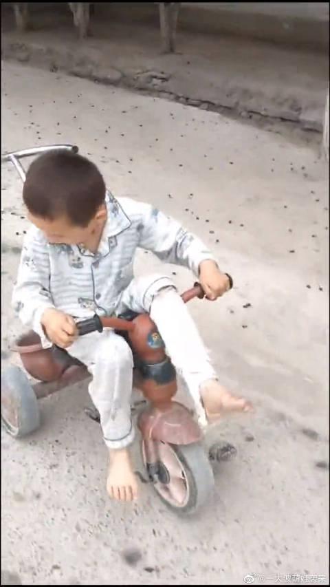 熊孩子腿骨折了,竟还那么会玩,这都成单脚蹬了!