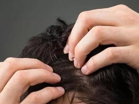 恒美植发:6大脱发位置,看中医给你说说其中门道