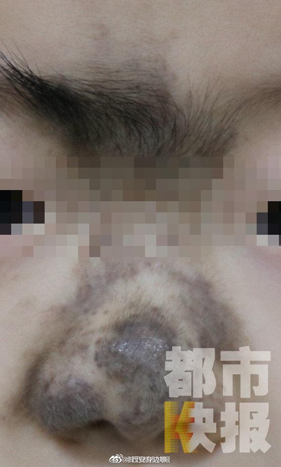 """七岁男孩面部巨痣 整形医生妙手""""换鼻子"""""""