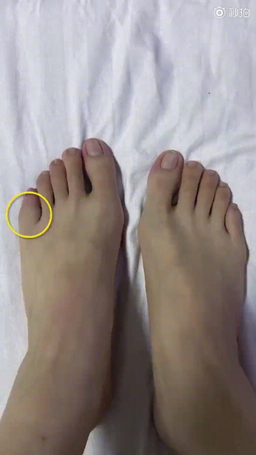 女子称脚趾被咬肿胀两年竟要切除:骨巨细胞瘤