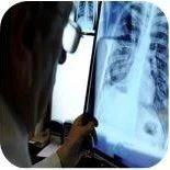 哈萨克斯坦和邻国爆发肺炎疫情,究竟是新型病毒还是新冠变异?