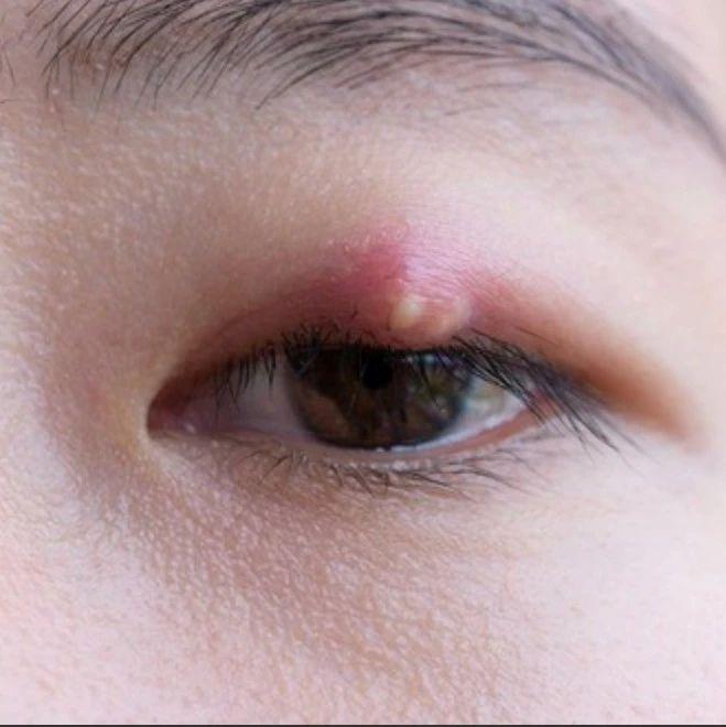 """长了""""针眼""""(麦粒肿),怎样才能消的快?眼科专家来支招"""