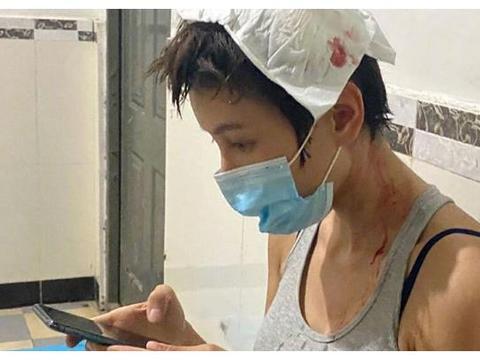 张蓝心拍戏头部受伤,伤口3厘米,包扎后回到剧组被赞敬业