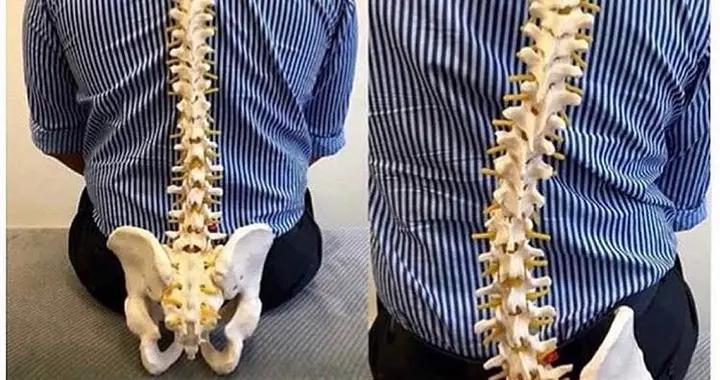 脊柱侧弯,长短腿?原来都是跷二郎腿惹的祸(附瑜伽调整)