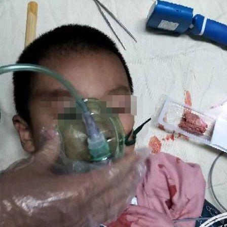 南昌4岁孩子全身缺氧,医生从喉部取出的东西,让人想不到