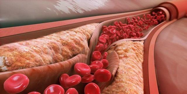 """3个习惯,容易让血管""""老化"""",做好3个方面,常吃1物,养血管"""