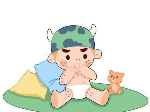 婴幼儿湿疹修护霜杏璞霜:宝宝皮肤护理新保障