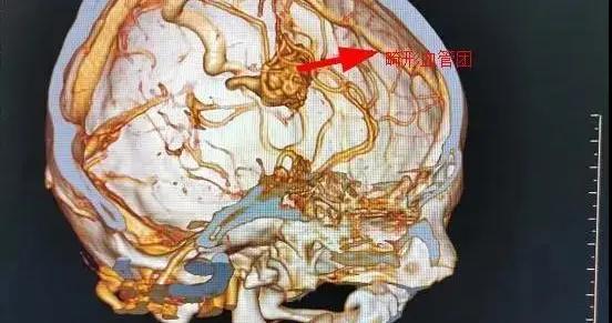16岁高三男生突发脑溢血,被紧急送医!注意10个身体信号