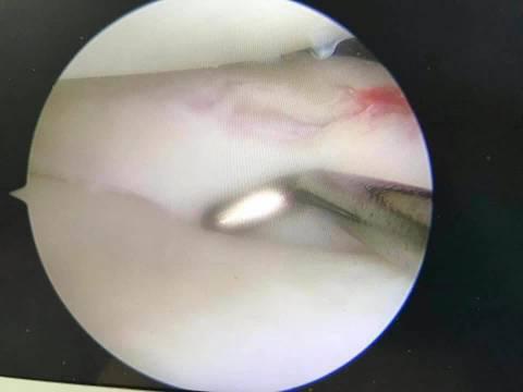 小朋友前交叉韧带损伤伴半月板损伤的处理