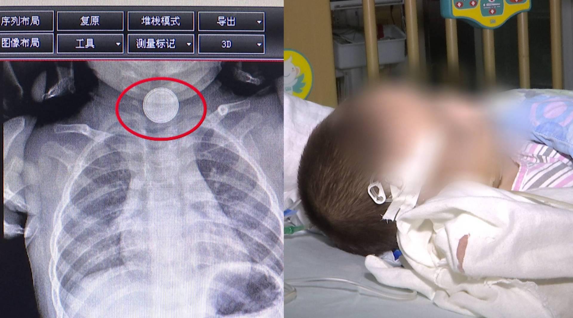 两幼童均因吞食纽扣电池被送进ICU……