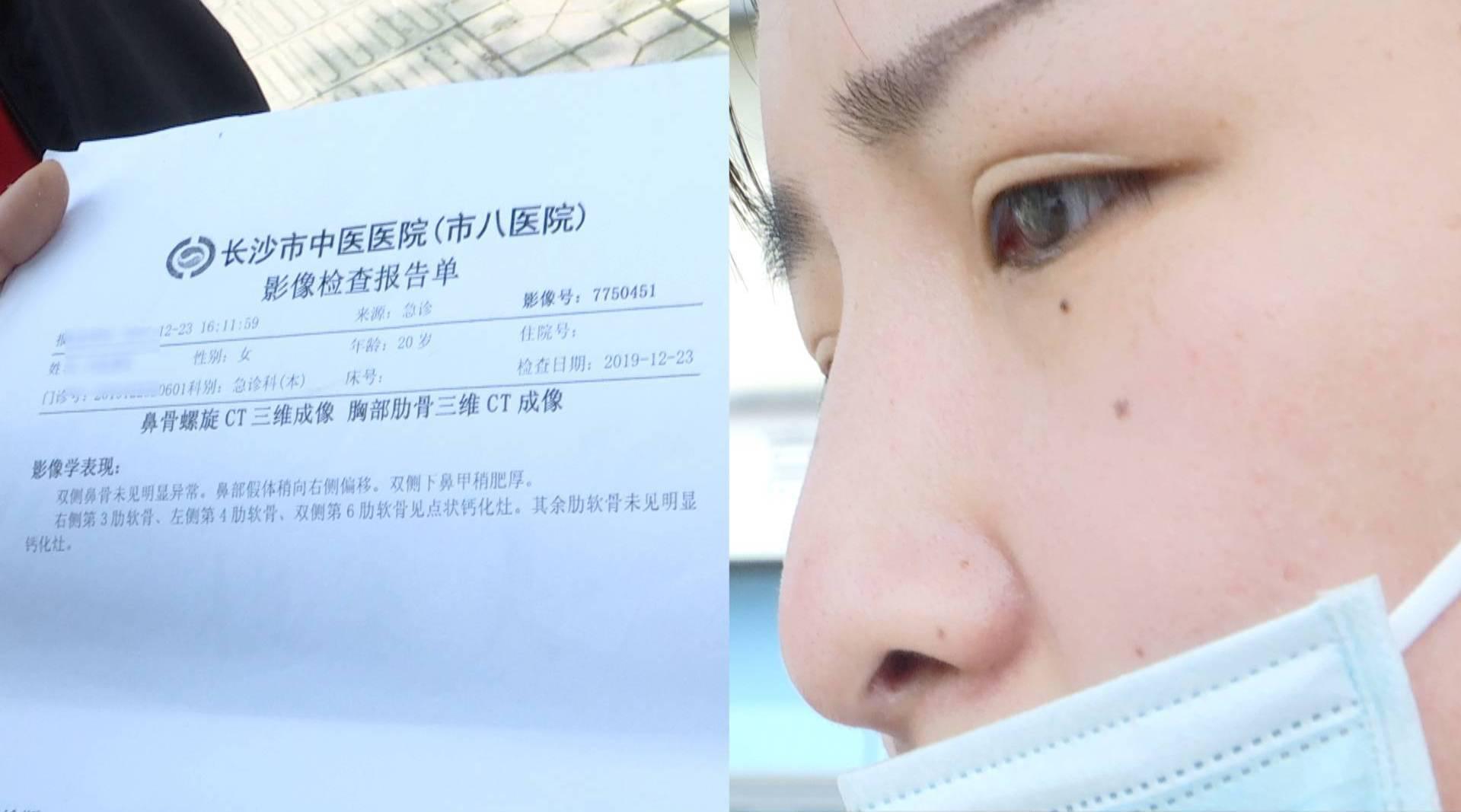 女子整形后鼻梁变歪,复诊时让人又绝望又窒息的事情发生了