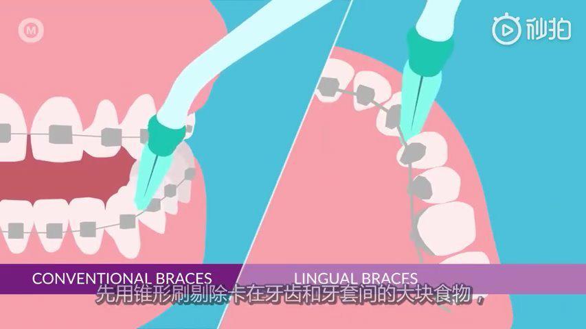 保持口腔卫生对牙齿正畸治疗的成功而言十分重要……