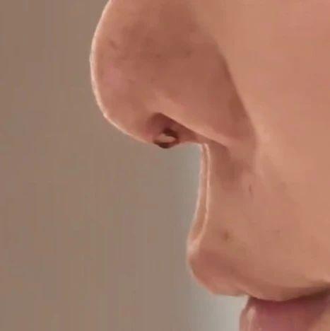 """湖南一女子整容后鼻子破了个洞,假体露了出来!要求换方式再整,长沙禾丽医疗美容:""""地摊货""""换""""LV""""可能吗?"""