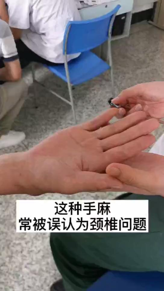 不是所有的手麻都是颈椎引起,腕管综合征也是常见原因。