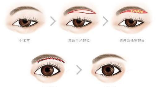 什么方法可以解决眼尾下垂?