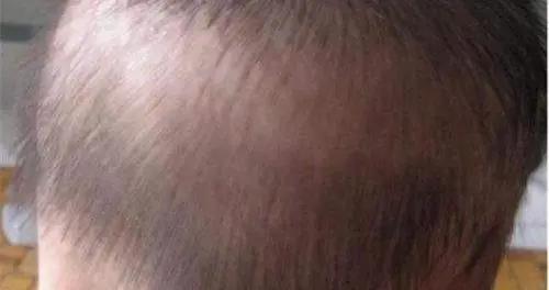 宝宝枕秃、头发少是缺钙?儿科医生:学会4招,让娃拥有健康头发