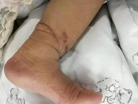 """胎儿患罕见病,出生后伤口似被""""绑腿"""",深可见骨!医生:要截肢"""