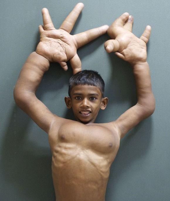 """男孩从出生就与众不同他的手掌堪称如来的""""五指山"""""""
