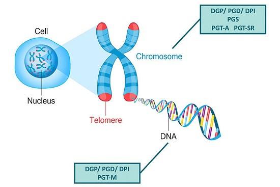 染色体 異常 原因