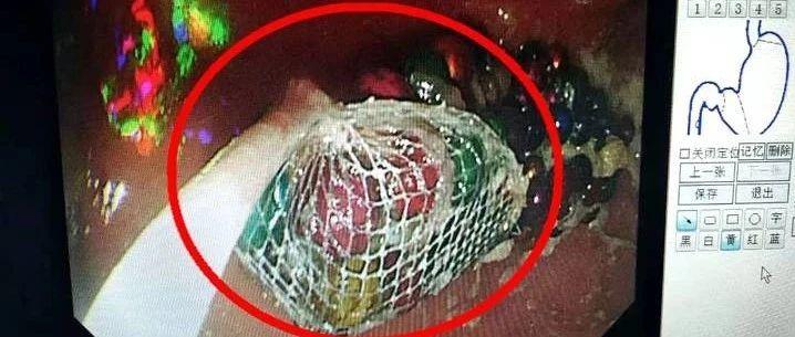 事发济南:5岁女童误吞190颗磁珠,待胃里2个月,惊呆医生