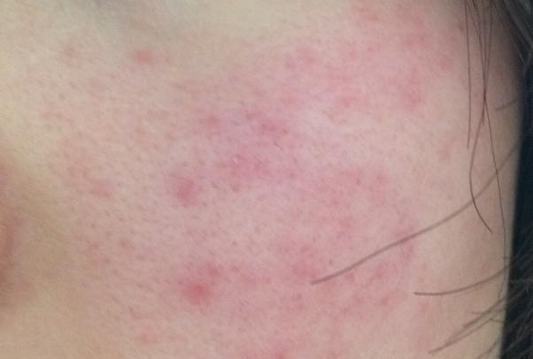 皮肤泛红、起皮?做好这3步,增厚角质层,与敏感肌说拜拜