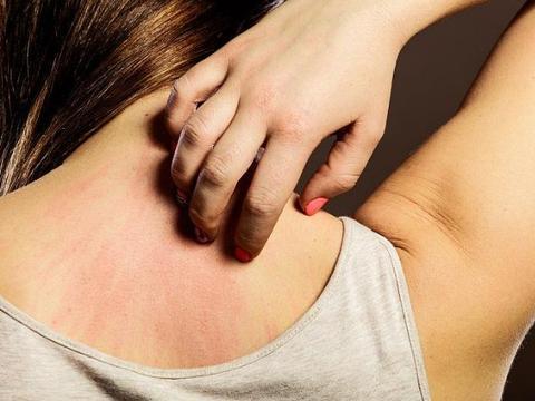 夏天皮肤瘙痒反复不好,你可能是过敏性荨麻疹