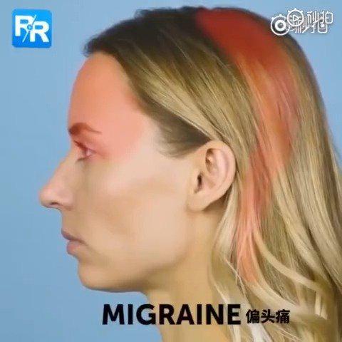 教你1分钟缓解偏头痛
