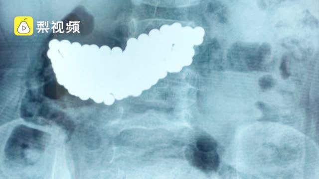 罕见!女童误吞190颗磁珠两个月,整个胃被塞满