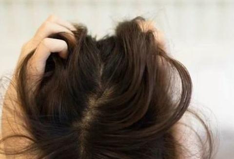 女性掉发严重就吃它,养发护发,强过生发剂,再不怕掉发