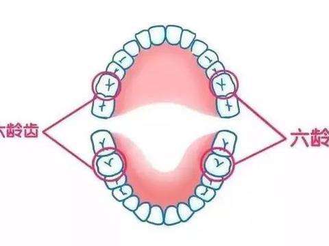 杭州美莱口腔科普:六龄齿坏了没得换,90%父母都不知道