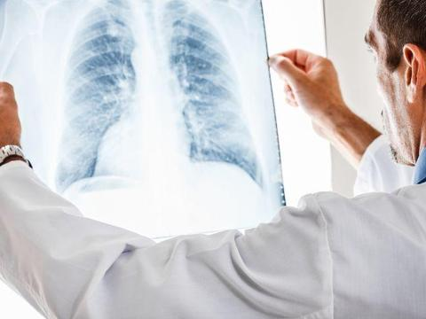 36岁女子,查出肺癌晚期,手上出现一种标志,及时查查肺,别忽视